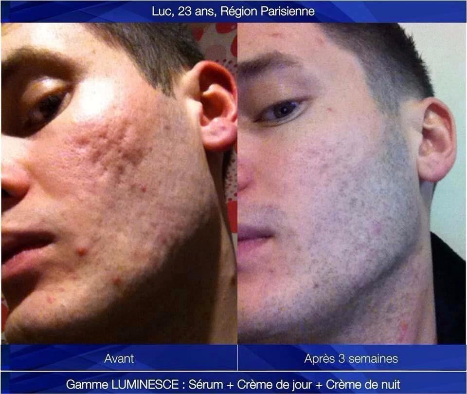 antes e depois Luminesce Facial