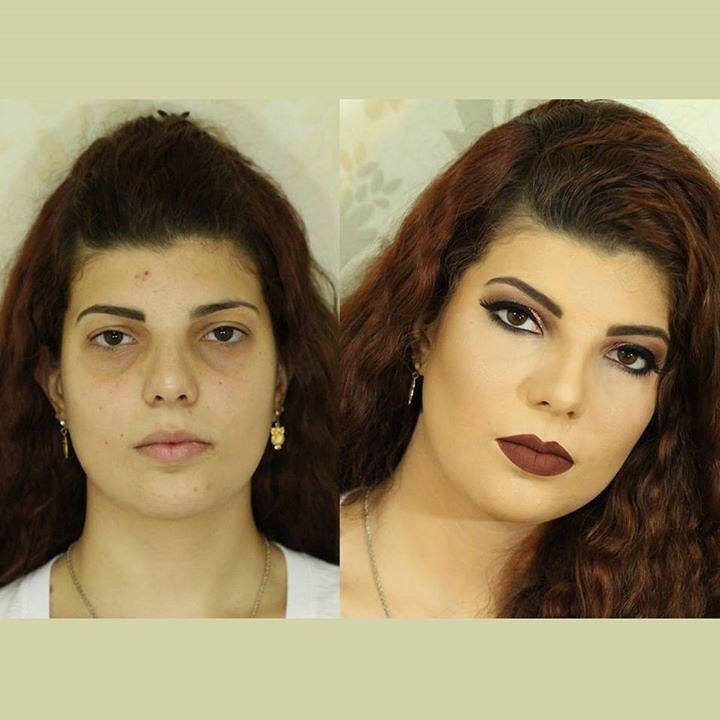 Trabalho Antes e Depois Juliana Balduino